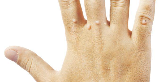 rimpelige huid armen
