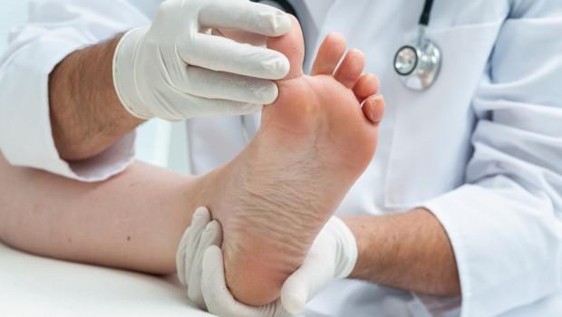 pied abimé soigné par un docteur